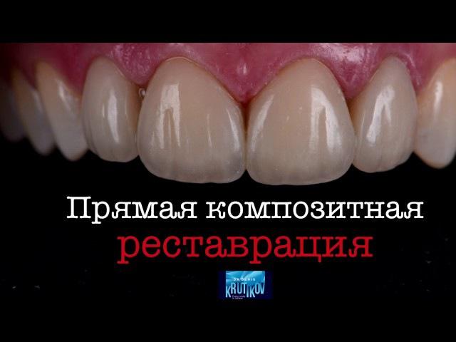 Работа доктора Дениса Крутикова Прямая композитная реставрация Estelite Asteria