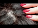 How To Get Rid Of Dandruff │ Best 5 Home Remedies To Remove Dandruff