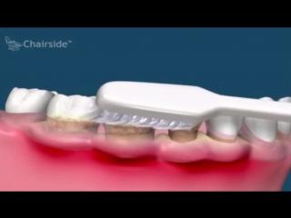 Что будет если не чистить зубной налет и камень؟ Пародонтология. Стоматология._cut