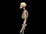 Изменение скелета тех, кто не держит осанку