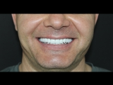 Dr- Azamat -Tekuyev - Smile-Designer - stomatologiya - BEFORE AFTER-movie and still photography