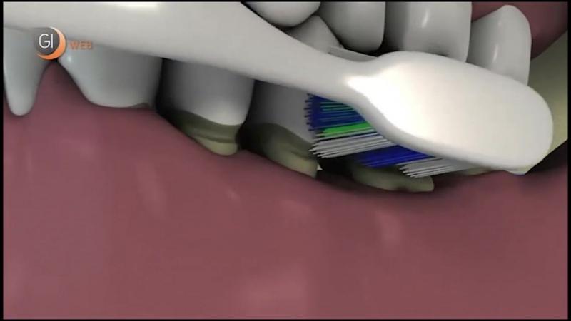 Последствия неправильной чистки зубов