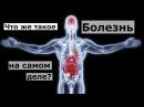 Бесслизистая диета Арнольда Эрета