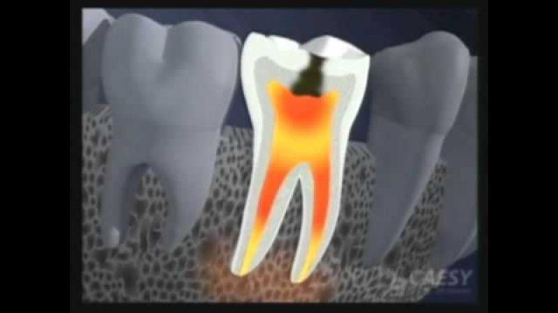 molar tooth abscess - 480×360