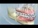 YORK ORTHODONTICS. Orthognathic surgery class III. Ортодонтия.