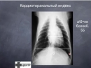 Вебинар Hills Рентгенография грудной клетки МДЖ Часть 1
