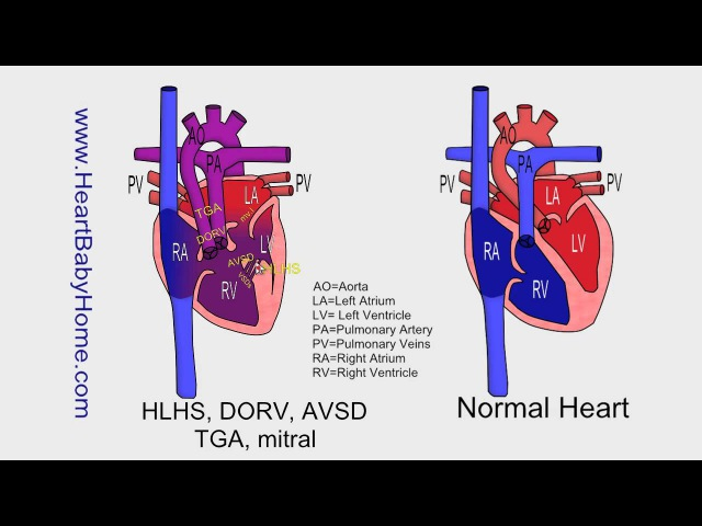 63 HLHS DORV AVSD tga