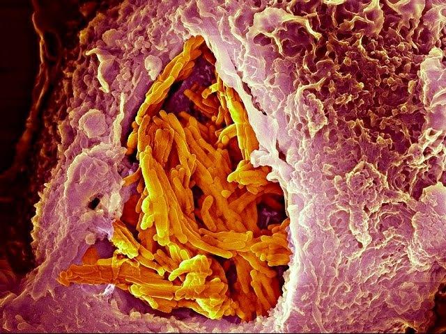 Как выявить туберкулез Заражение проникновении палочки в организм