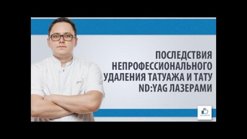 Последствия непрофессионального удаления тату Nd:YAG лазерами