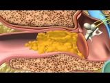Woman's Impacted Rock Hard Earwax Removal