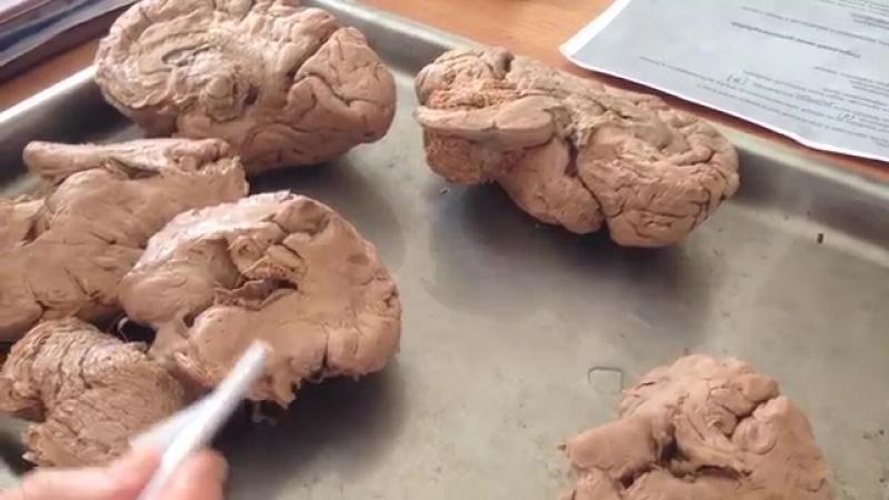 Белое вещество полушарий головного мозга (3 группы) » Freewka.com - Смотреть онлайн в хорощем качестве