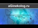 Лечение эндометриоидной кисты яичника без операции