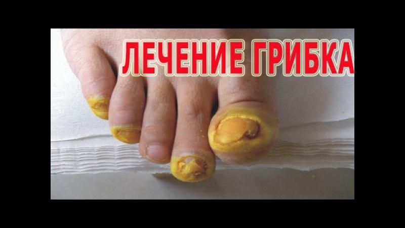 ★Лечение ГРИБКА НОГТЕЙ народными методами. 9 лучших рецептов против МИКОЗА.