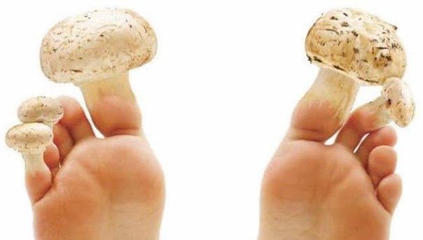 Куркума грибок ногтей