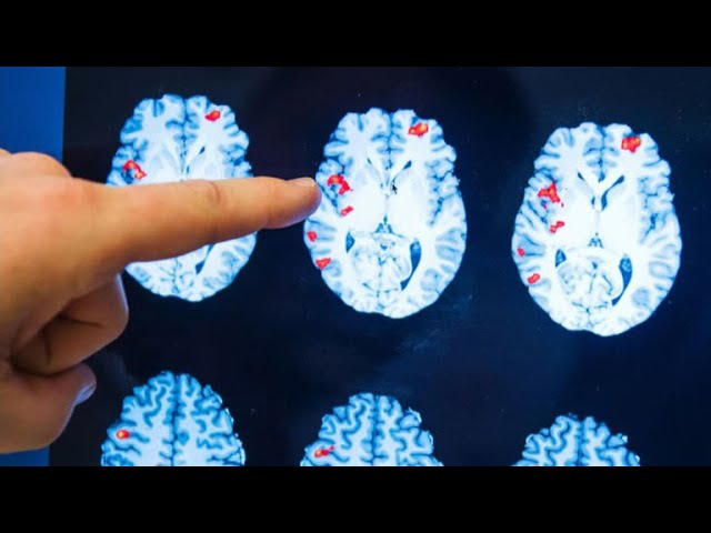 Researchers say theres evidence that consciousness continues after clinical death