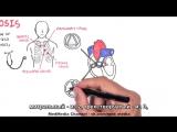 Аортальный стеноз - краткий обзор