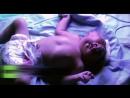 Ребенок без мозга и с двумя лицами