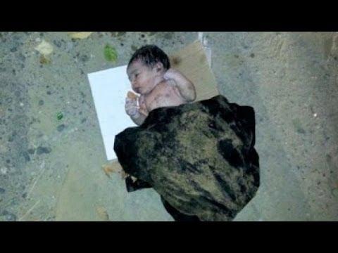 Умирающего младенца спасла собака