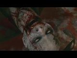 Metal Gear Solid 5 Phantom Pain Skull Face Death