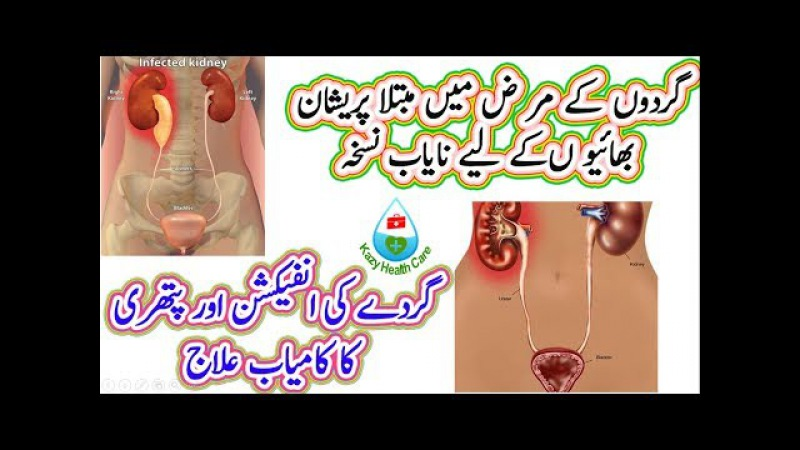 Successful Treatment Of Kidney Infection And Stone | Perfect treatment Of Kidney Stone