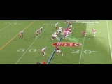 NFL 2017  PS  Week 01  San Francisco 49ers - Kansas City Chiefs  Condensed Games  EN