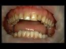 Композитная реставрация зубов при флюорозе (желтые зубы) исправление скученности зубов.