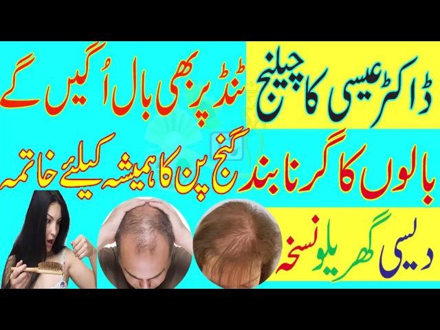 Dr essa hair tips|ganjpan ka ilaj|dr essa hair treatment