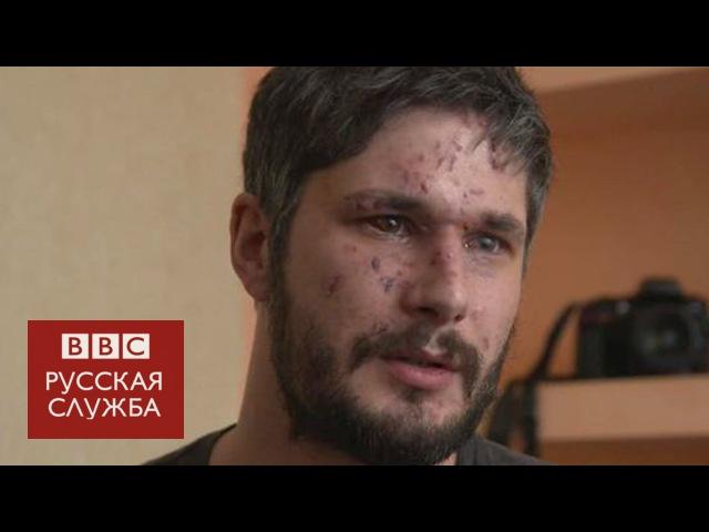 Британец, раненый в Авдеевке: Я стал проверять, есть ли у меня руки и ноги
