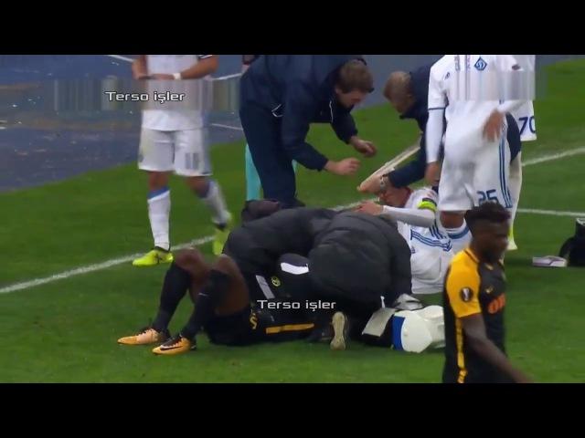 Домагой Вида получил травму головы 20.10.2017