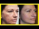 Aceite de rosa mosqueta elimina cicatrices, manchas y arrugas