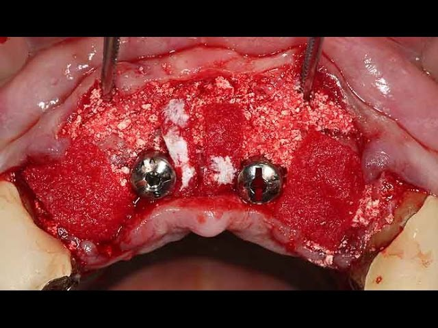 Strategic implant positioning to avoid peri-apical lesion (Live)