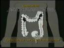 Смерть притаилась в толстой кишке! Чистый кишечник здоровый организм