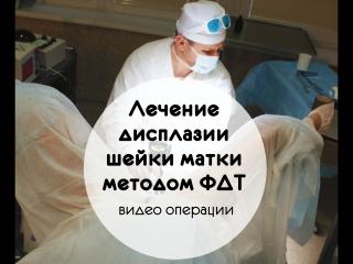 Лечение дисплазии шейки матки методом фдт