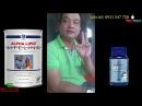 Nhân Chứng Sử Dụng Sữa Alpha Lipid - Hoại tử chỏm xương đùi