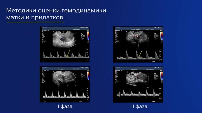 Ультразвуковая оценка васкуляризации органов малого таза _ Ирина Озерская