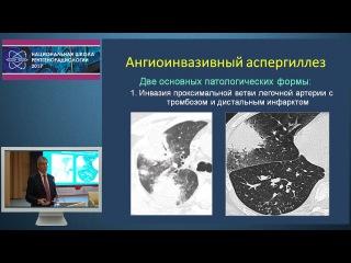 И.Е. Тюрин - Рентгенодиагностика нетуберкулезных инфекционных осложнений при им...
