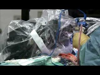 NeuroArm robot performs brain surgery: A world first