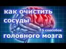 5 способов очищения сосудов головного мозга
