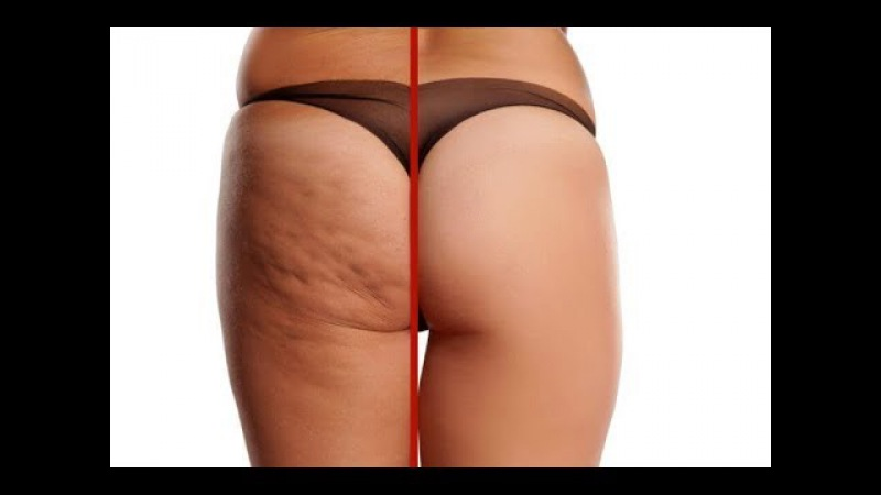Get Rid Of Cellulite Fast, Easy And Straightforward Steps
