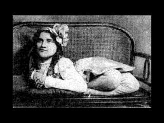 Цирк уродов. Часть 3: истории и трагедии цирковых уродцев, 10 самых страшных историй ужасных заболеваний