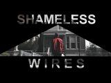 Shameless US - Wires
