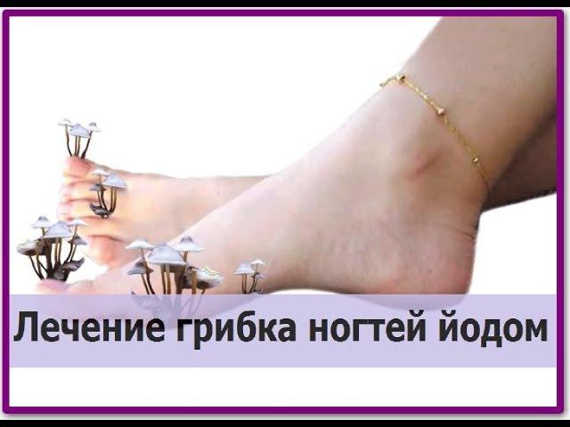 ГРИБОК НОГТЕЙ. Лечение грибка ногтей йодом. Йод от грибка ногтей на руках и ногах...