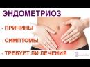 Эндометриоз коммерческий диагноз Др Елена Березовская