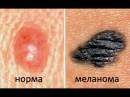 Как распространяются метастазы при раке на примере меланомы