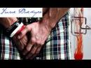 Кровь в сперме норма или патология