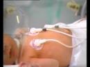 Beyin Felci Ekip Multimedia Hastalıklar Belgeseli