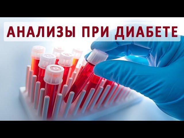 Какие анализы для проверки сахарного диабета