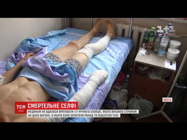 В Одесі помер 17-річний підліток, якого вразив струм під час спроби сфотографуват...