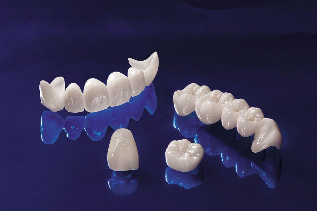 Зубные мосты могут помочь восстановить вашу улыбку
