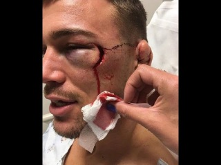 Чудовищное рассечение бойца ММА Нокаут / Monstrous dissection MMA fighter after a brutal knockout